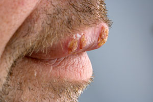 patient with cold sores on mouth
