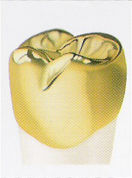photo of a gold dental crown