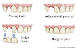 illustration of teeth conditions